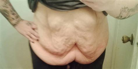 excess skin after weight loss picture 3