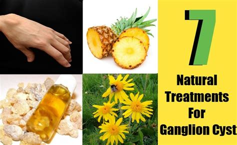 turmeric powder for ganglion cyst picture 10