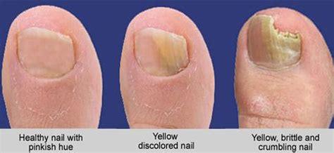 common causes of toenail fungus picture 18