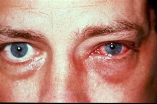 bacterial infection symptoms picture 3