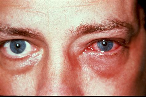 herpes simplex virus in the brain picture 9