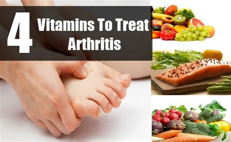 wow arthritis treatment supplements picture 1