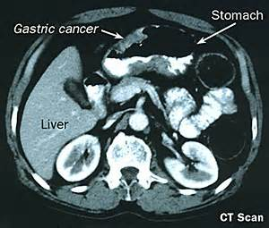 intestinal m on ct picture 2