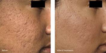 needling for acne scarring picture 1