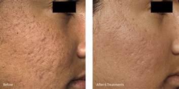 skin needling in for acne scars in california picture 1