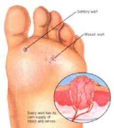 holistic foot wart removal picture 5