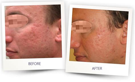 delaware newark acne and scar treatment md picture 12