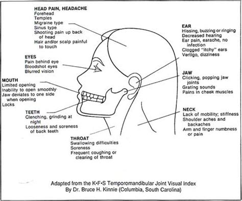 can joint pain casue dizziness picture 18