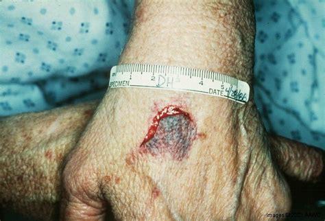 skin tear in the elderly picture 3