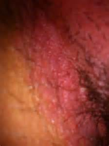 genital hives picture 2
