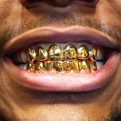 cheapest wholesale price on gold teeth picture 9