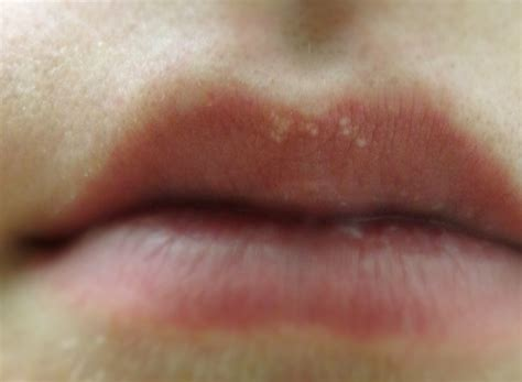 white pimples on lips picture 18