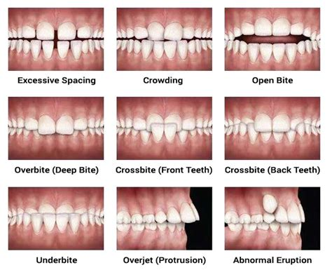 bone loss in teeth picture 11