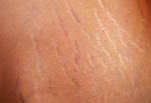 best peel for stretch marks picture 5