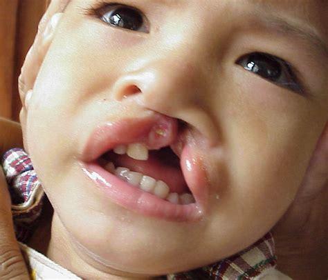 clef lip picture 15
