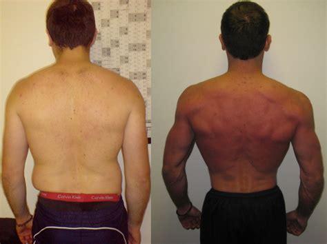 fenugreek and cellulite picture 10