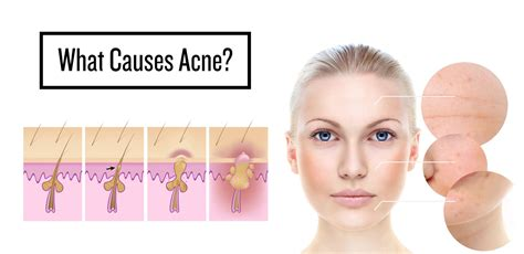 causes severe acne picture 15