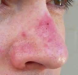 acne support picture 1