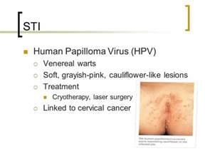 buy human papilloma virus online picture 10