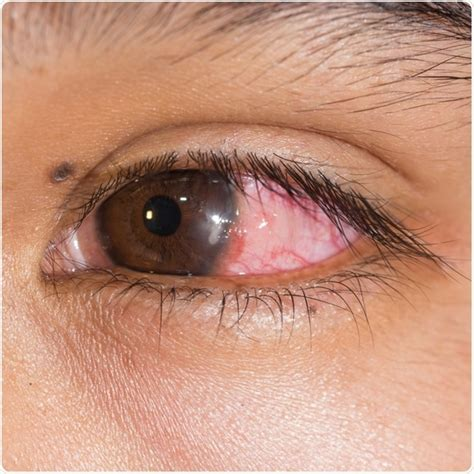 bacterial eye infection picture 3
