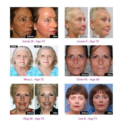 dr dr oz revitol aging cream picture 2