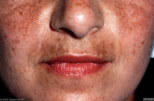 Upper lip melasma picture 1