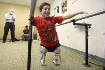 female artificial leg stories picture 5