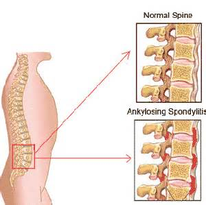 herbal supplements for sacroiliac joint pain picture 11