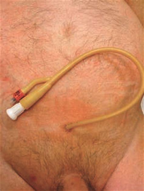 superapubic catheter picture 5