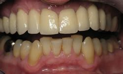 fort worth teeth whitening picture 13