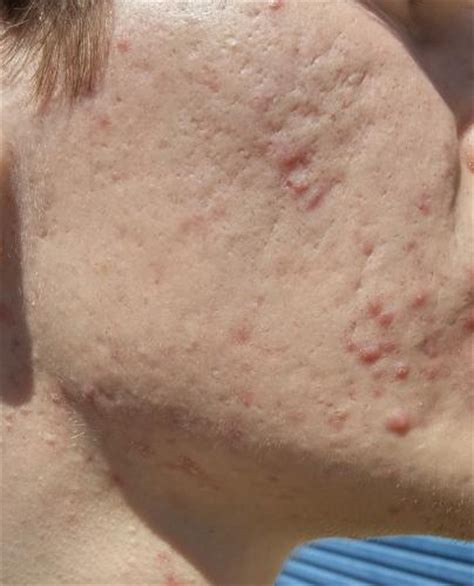 acutane for acne picture 11