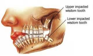 can wisdom teeth cause sinus problems picture 1