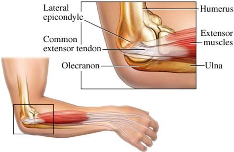 elbow joint pain picture 3
