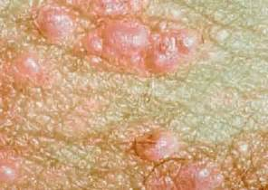genital warts in women picture 2