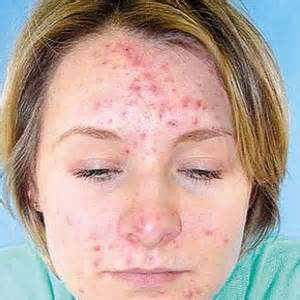 natural cure for acne on face picture 14