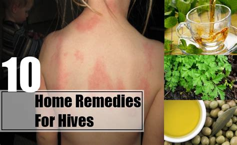 homeopathic remedies for hives picture 3