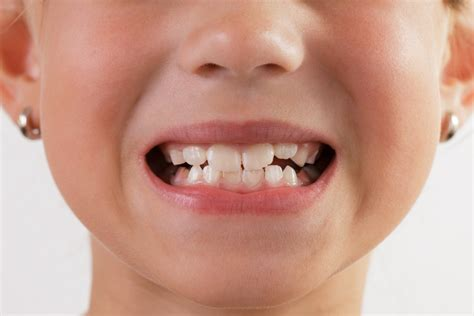 child's health loose teeth picture 14