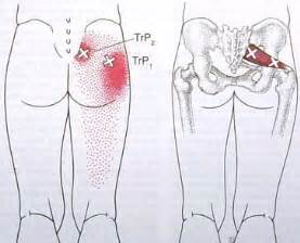 acupressure point for pain in sacroiliac joint picture 2
