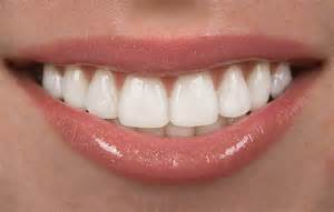 dentist porcelain teeth picture 5