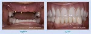teeth bleaching san francisco picture 9