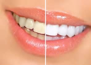 trenton teeth whitening picture 1