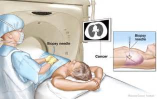 ct scan guided liver biopsy picture 10