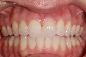 healthy teeth picture 2