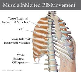 pain under lt rib,upper back pain constipation picture 5