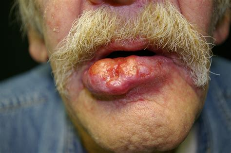 cancer lip picture 2