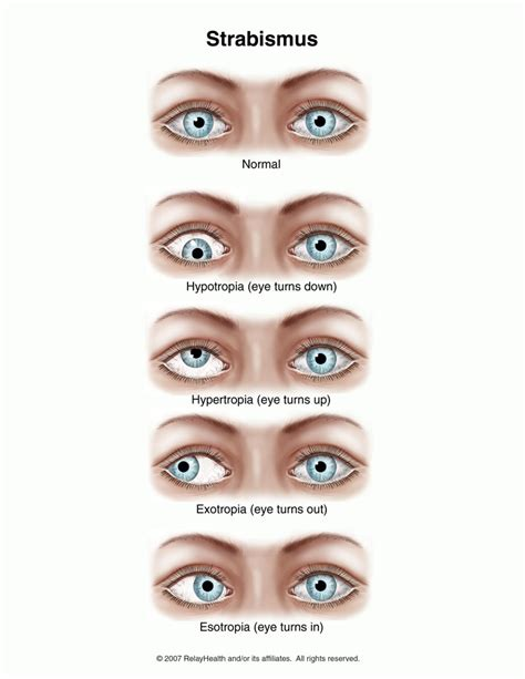 double vision, strabismus surgery picture 1