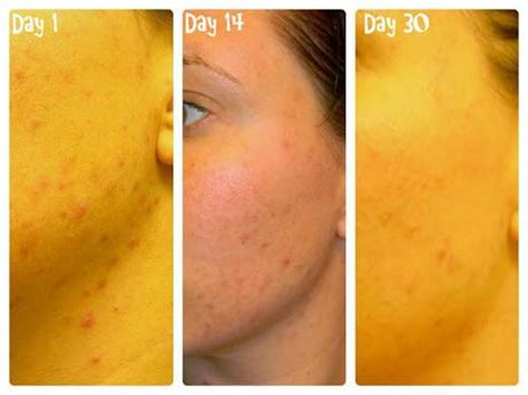 results of beautiful skin from soy milk picture 10