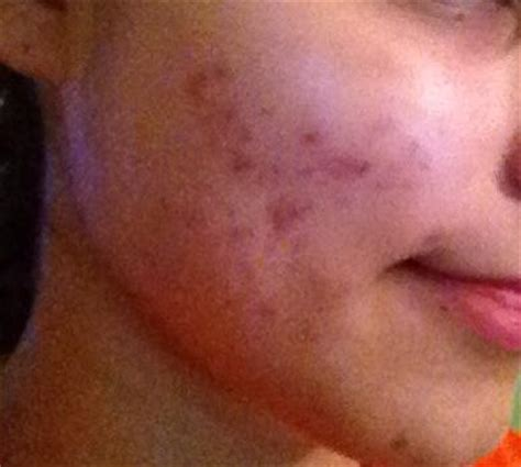 red spots from acne picture 3