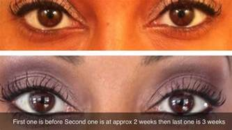 how long does it take to see results picture 1