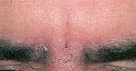 do i have yeast infection picture 14